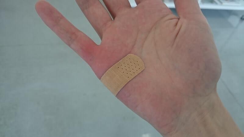 病院にて暴れるモコに引っ掻かれた手
